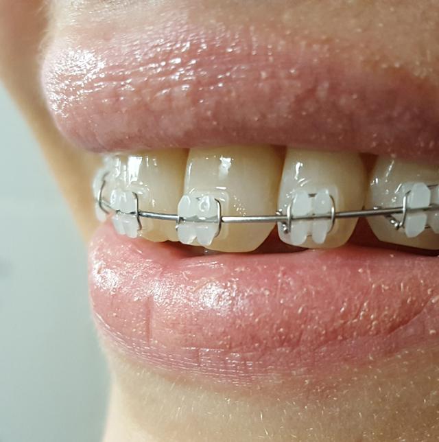 Projekt Zähne Meine feste Zahnspange Erfahrung