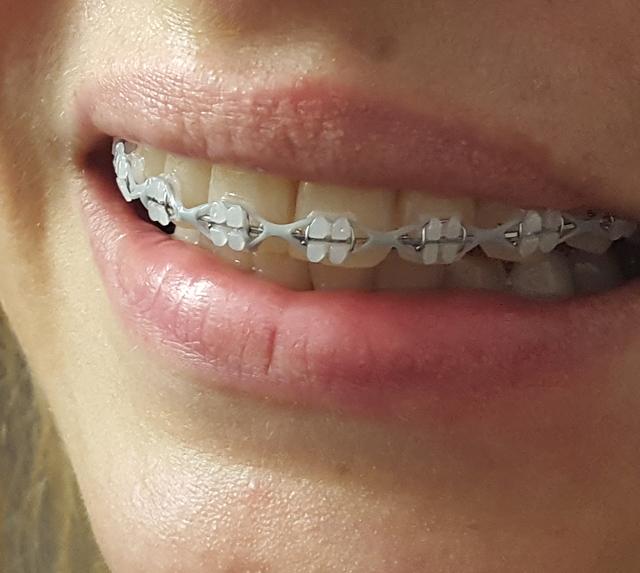 Zähneputzen und Zahnpflege mit einer festen Zahnspange 01